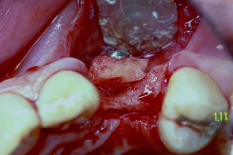 2. Innesto osseo prelevato a livello del ramo mandibolare.