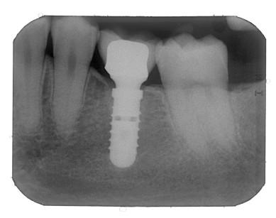 15. Radiografia di controllo a quattro anni.