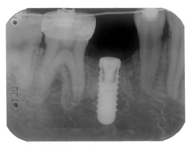2. Radiografia di controllo.