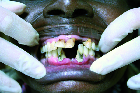 2. Quadro di parodontite severa su paziente adulto residente nei pressi di Meru.