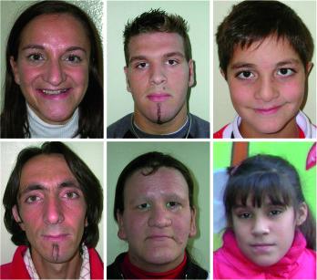1. Facies caratteristica dei sei pazienti sottoposti a cure odontostomatologiche.