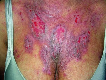 2. Dermatite eczematosa cronica nella paziente M.S.