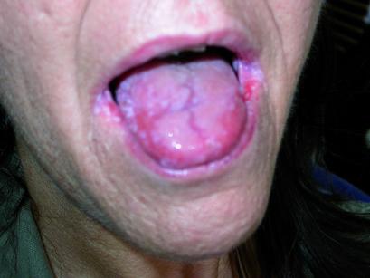 4. Lesioni muco-membranose al cavo orale nella paziente C.M.