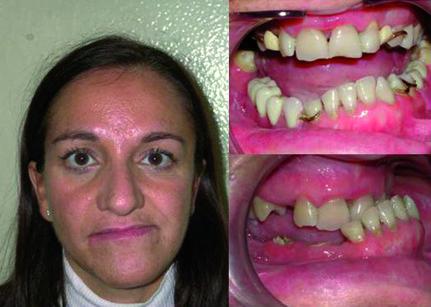 5. Quadro odontostomatologico della paziente C.M.