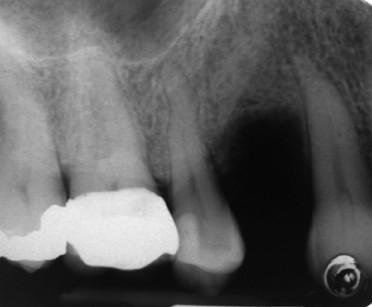 2. Radiografia pre-operatoria.