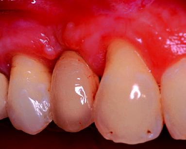 5. Controllo clinico a un anno dalla protesizzazione.
