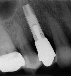 6. Controllo radiografico a 18 mesi dall'innesto osseo.