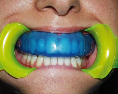 11 e 12. Un altro esempio di paradenti individuale a protezione di una dentatura perfetta.