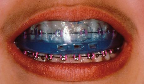 6. Un modello di paradenti semi-individuale di nuova generazione (Boil and Bite NG), che ben si adatta alle diverse situazioni orali; in questo caso ottimo per un paziente in terapia ortodontica.