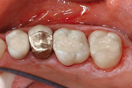 6-7. Sostituzione di amalgame dentali con restauri in vetroionomero e applicazione di resina di rivestimento protettiva.