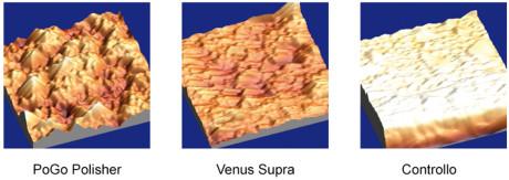 1. Differente effetto di lucidatura con il protocollo PoGo polisher e con il protocollo Enhance, rispetto al controllo non trattato, su un composto Venus Diamond.