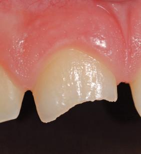 2. Particolare dell'incisivo dopo la frattura.