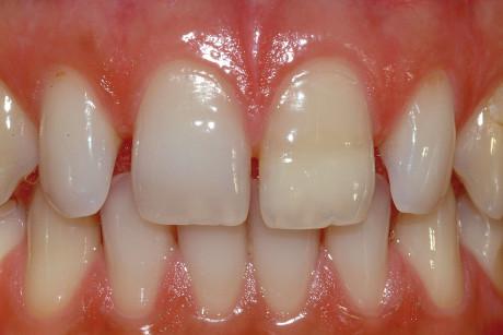11. A 20 anni si osserva solamente una leggera pigmentazione, dovuta al fatto che il ponte dentinale altera i parametri della riflessione del colore attraverso lo smalto. I test di vitalità sono assolutamente normali