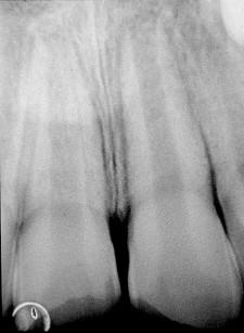 27. Radiografia endorale che evidenzia apice immaturo.