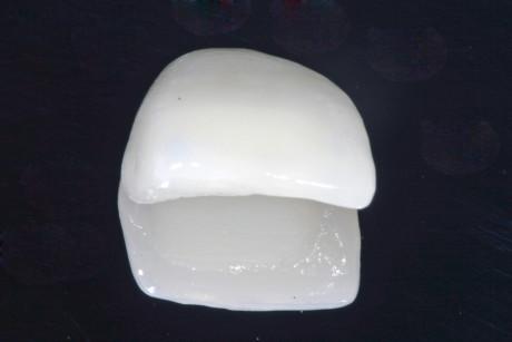 8. Restauro definitivo in ceramica pressofusa.