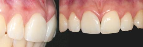 18. Follow-up a 12 mesi: aspetto frontale e laterale.