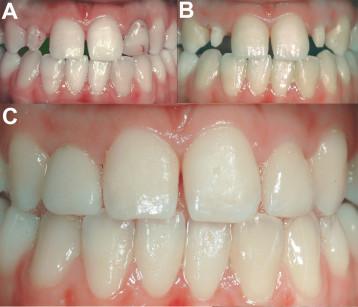 1. Riabilitazione protesica degli elementi 12 e 22 con corone in zirconio. Le immagini si riferiscono: A) stato iniziale; B) dopo la preparazione degli elementi; C) stato dei manufatti protesici a un anno dalla cementazione.