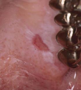2. Lesione lichenoide orale: ai test epicutanei il paziente risultava ipersensibile a nichel, oro e argento.