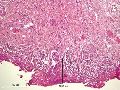 8. L'ipercheratosi a maggior ingrandimento: la linea (320,3 µm) indica la misura del danneggiamento termico laser indotto, la carbonizzazione e la vacuolizzazione del citoplasma (ematossilina-eosina; ingrandimento 100x).