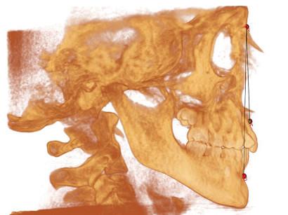 2. Rappresentazione grafica dell'angolo ANB su visione sagittale del cranio.