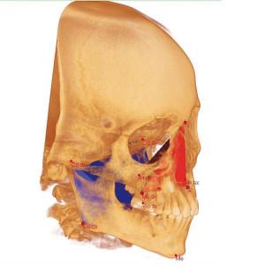4, Punti cefalometrici individuati su rendering volumetrico del cranio.