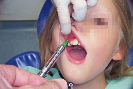 15. Esecuzione dell'anestesia nella zona del vestibolo precedentemente trattata con anestetico topico.