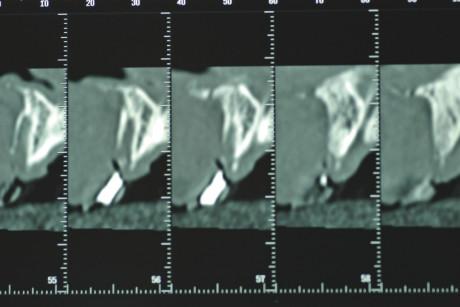 2b 2 a-b. Particolare di OPT (fig. 2 a) che evidenzia gli alveoli disabitati in seguito al trauma (12-11-21-22-23 e 32-43), privi della corticale vestibolare come testimoniato anche dalla TC fatta nella stessa data (fig. 2 b).