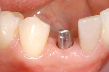 6. Al termine del trattamento ortodontico e dopo 4 mesi dall'inserimento dell'impianto, viene avvitata la mesiostruttura a livello di 43.