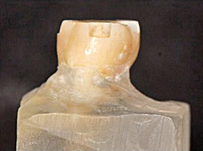 4. Visione laterale box cervicale.