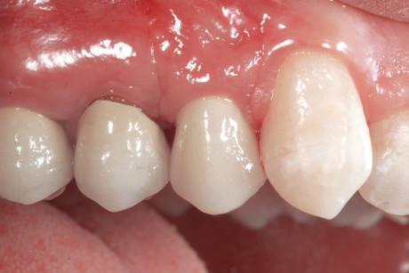 7. Corona definitiva di 24 e situazione dei tessuti molli dopo la sua cementazione: visione vestibolare.