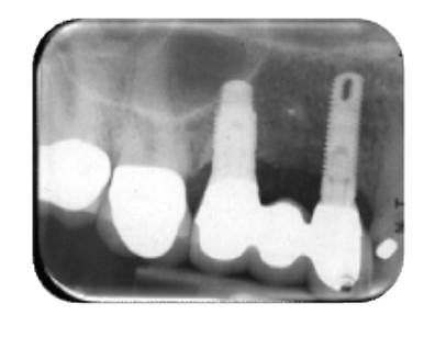 3. Radiografia iniziale.