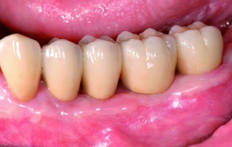 7. La sovrastruttura protesica con le corone in perfetta armonia con i denti naturali permette il raggiungimento del successo estetico e delle condizioni ideali per il mantenimento dell'igiene.