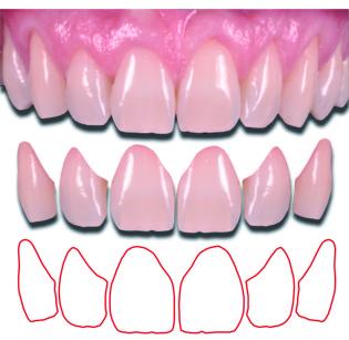 2. Le immagini del database vengono trattate in modo da estrapolare singolarmente gli elementi dentari che ne compongono il sestante anteriore.