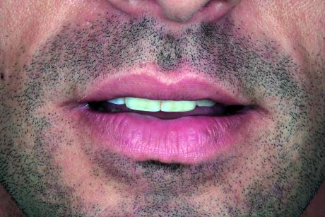 5. F3: rest position. Permette la valutazione dell'esposizione degli incisivi con le labbra rilassate.