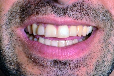 """6. F4: fonema """"I"""". Durante la pronuncia del fonema I la distanza che intercorre tra il labbro superiore e quello inferiore viene occupata in percentuale variabile dagli incisivi superiori."""