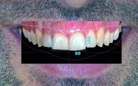 15. Il rettangolo ottenuto viene duplicato e traslato lateralmente per determinare l'area nella quale verrà inserito il centrale contro laterale.