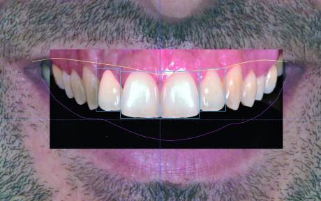 17. Inserimento dei denti dal database. In questo caso la riabilitazione estetica coinvolge 2.1,1.1 e 1.2.