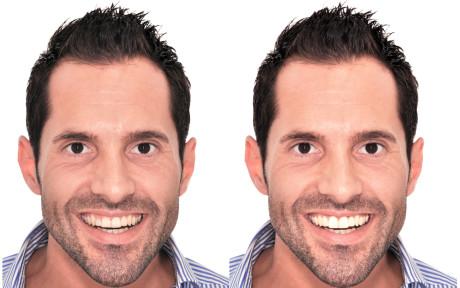 19. Previsualizzazione del progetto contestualizzata nel volto del paziente. Confronto tra la situazione di partenza (a sinistra) e quella progettata (a destra).