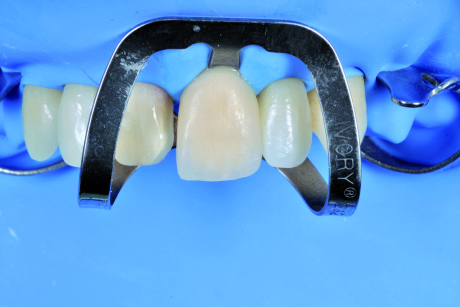 38. Le faccette vengono cementate singolarmente per permettere il controllo dei punti di contatto.
