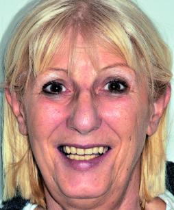 55. Foto del sorriso con la protesi pre-estrattiva in situ.