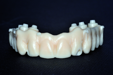 66. Foto del prototipo protesico di prova in PMMA.