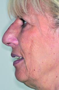 70. Foto laterale con il prototipo in situ per la verifica del supporto dei tessuti peri-orali.