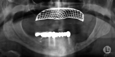 6. Ortopantomografia (OPT) di controllo post-operatoria.