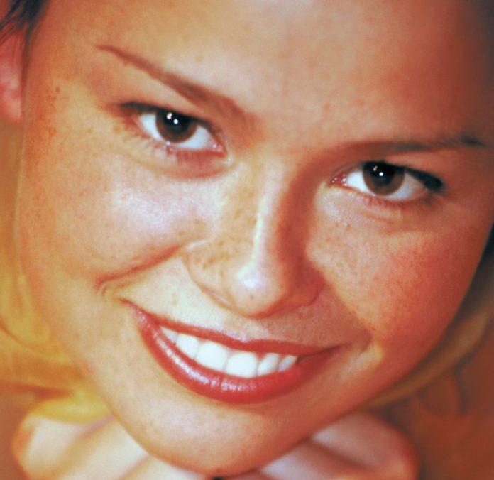 sbiancamento dentale sorriso faccette dentali sbiancamento dentale perossido di carbammide perossido di idrogeno