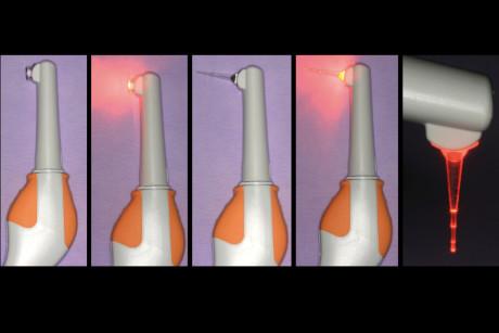 2. Lampada LED di ultima generazione per utilizzo fotodinamico. Si notano i diversi puntali per applicazione parodontale sopra-gengivale e sotto-gengivale. Si vede anche la diffusione della luce nello spazio circostante.