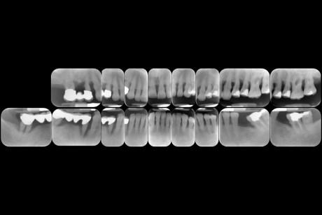 6. Aspetto radiografico del caso. Si notano la distruzione generalizzata dei tessuti duri parodontali, con interessamento delle forcazioni, e difetti infraossei. Le radiografie confermano la diagnosi di parodontite cronica generalizzata grave e terminale per la protesi fissa nel IV quadrante.
