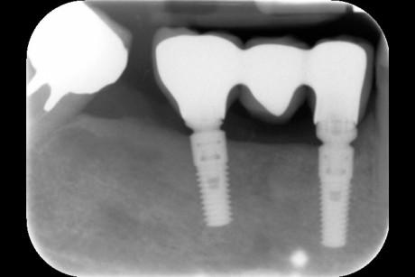 18a-18b. Aspetto clinico e radiografico a 16 mesi dalla chirurgia. Si nota l'ottimo risultato raggiunto dalle procedure chirurgiche.