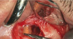 DM_il dentista moderno_lesione periapicale_apicectomia_trattamento e risoluzione