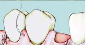 sutura doppia sospesa