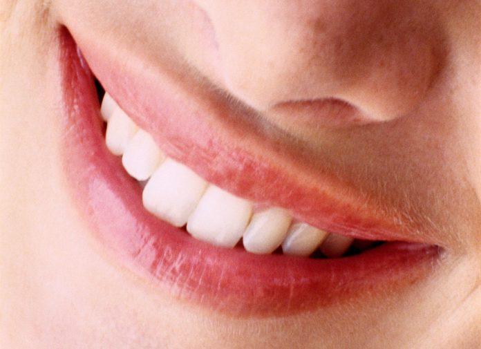 Denti faccette in ceramica